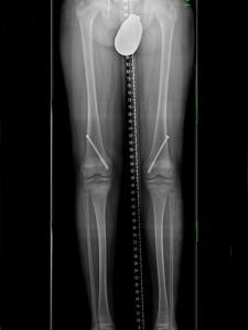 X-Beine nach Operation