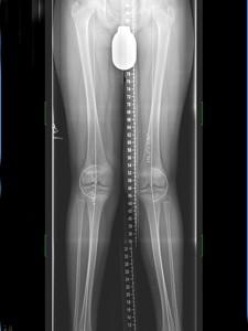 X-Beine