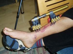 Bein gebrochen lange gips wie kind Bein gebrochen